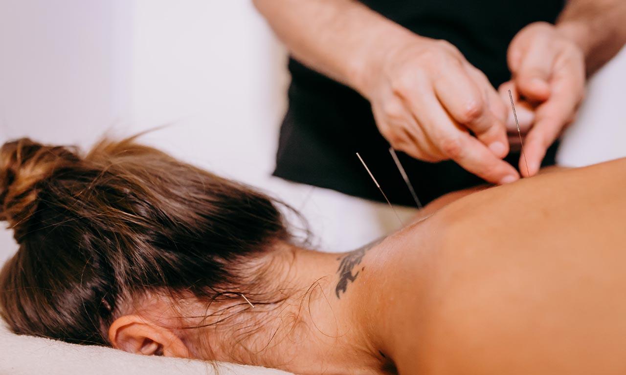 healthscout-Akupunktur-Massage