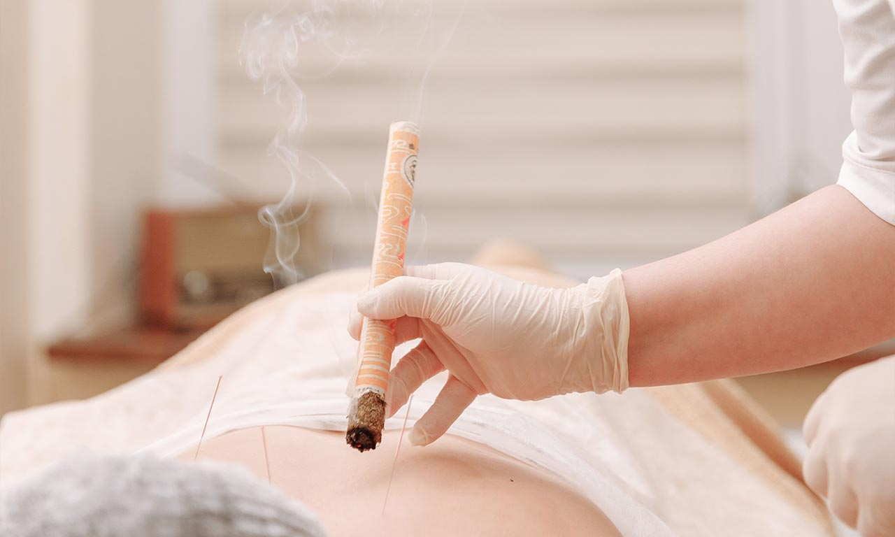 healthscout-therapieform-Moxa-Moxibustion